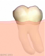 01-When a tooth is clean, the gums around it are usually pink and healthy