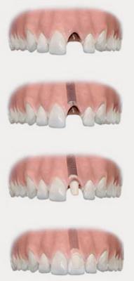Kingston Surbiton Surrey Dental Implant- Implant specialist-Surbiton Smile Centre