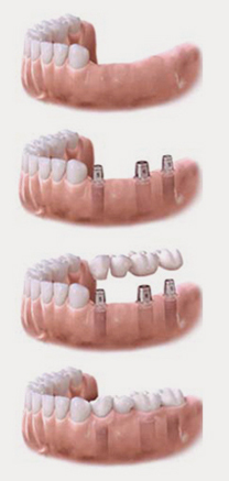 Surbiton Kingston dental implant -Dental Impalnt dentist surrey -Surbiton Smile Centre