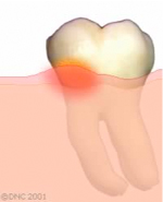 03-Plaque causes irritation of the gums