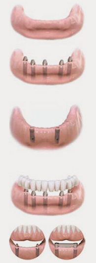 Implant denture - surrey dentist