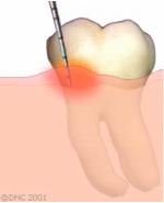 04-When gingivitis is present
