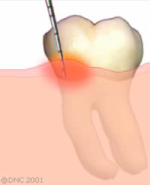 05-In almost all cases, periodontitis starts with gingivitis