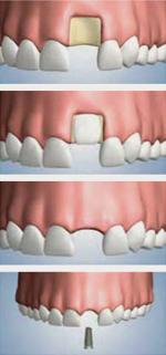 Dental Implant dentist surrey - bone grafting - Surbiton Kingston dentist -Surbiton Smile Centre