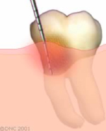 06-In susceptible patients, plaque and tartar will cause irritation of the gums and bone loss