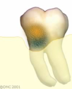07-Bone loss means that the support of the tooth is reduced