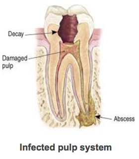 An infected pulp system in the tooth, shows abscess formation