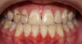 Teeth with severe staining and plaque