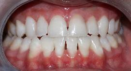 Teeth after whitening process