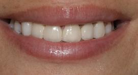 Teeth after cosmetic crown treatment