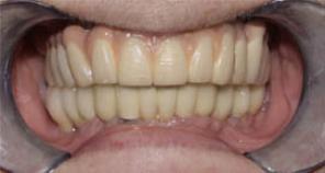 Implant retained denture fig 1