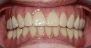 Implant retained denture fig 2