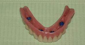 Implant retained denture before insertion
