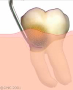 10-Special instruments are used below the gum line to remove soft and hard deposits from the tooth surface