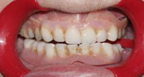 Old Dentures inside the mouth