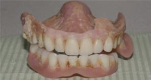 Old Dentures removed