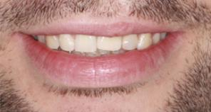 Crown and Veneer implants