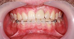 Crown and Veneers implant with braces