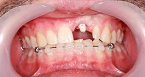 Implant and veneer implant with braces and missing tooth