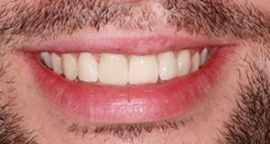 Teeth after crown and veneer treatment