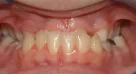 Teeth with underbite before Damon Clear Brace