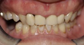 teeth before full mouth reconstruction with implant crowns