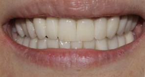 teeth after full mouth reconstruction with implant crowns