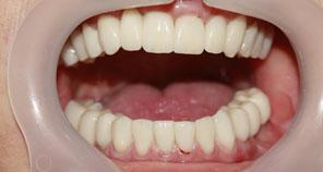 Open mouth after full mouth reconstruction