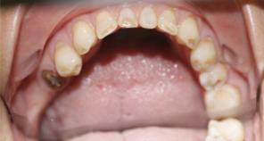 Teeth during full mouth reconstruction