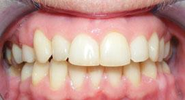 Teeth after orthodontic treatment with the Incognito Lingual Appliance