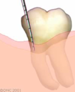13-Resective treatment- after resective surgical treatment