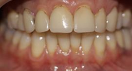 Teeth with veneer attachments