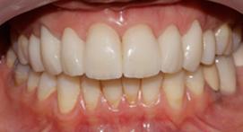 Teeth with porcelain veneers