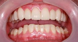 Crowns after whitening