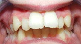 Teeth with overbite before Damon Clear Brace