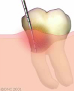 14-Regenerative treatment - Before the surgical phase