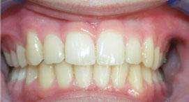 Teeth after use of Incognito Lingual Appliance
