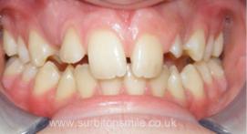 Teeth before Ceramic Braces