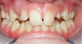 Teeth before orthodontic treatment