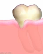 18-Receding gum-Gum tissue breakdown, called recession, results in exposure of the root surface