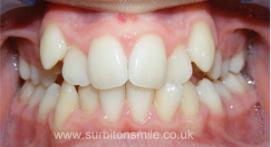 Misaligned toothline