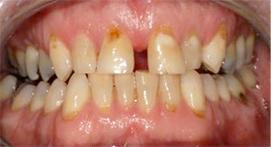 Crowns with heavy stains and plaques
