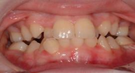 Teeth before orthodontic treatment with ceramic braces