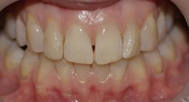 lower teeth are yellowed