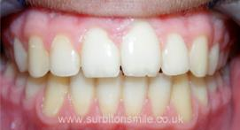 Teeth after orthodontic treatment