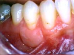 23-This is the same tooth after a graft successfully increased the attached tissue