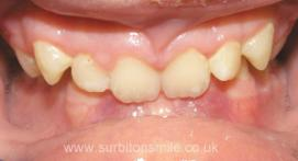 Teeth before orthodontic treatment on overbite