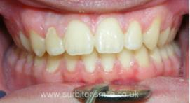 Teeth after orthodontic treatment on overbite