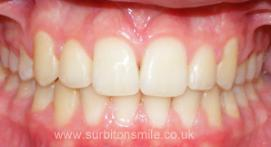 Teeth realigned with orthodontic treatment