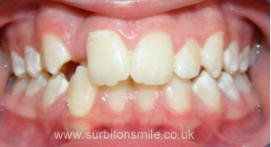 Crooked toothline before orthodontic treatment
